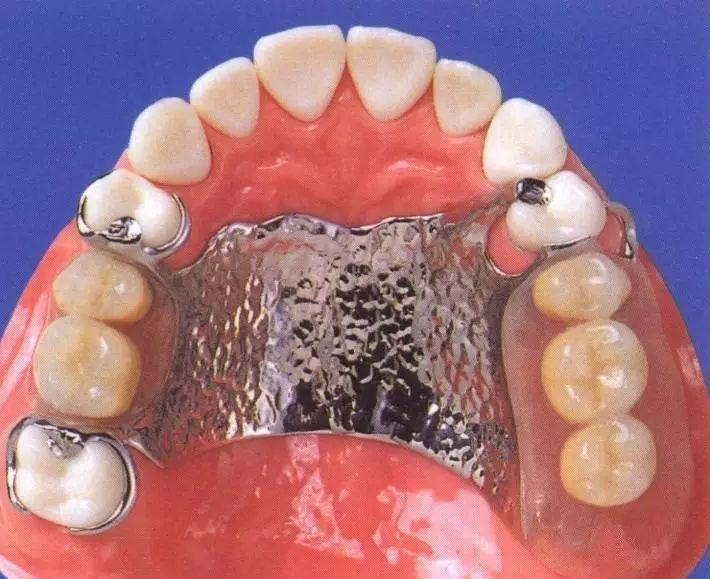 可摘局部義齒設計之四性特點