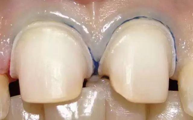 為什么備牙后需要拋光?
