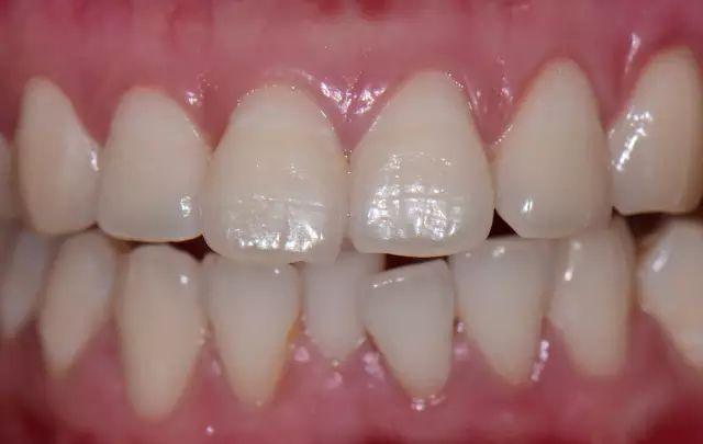 貝特福前牙修復—病例分享