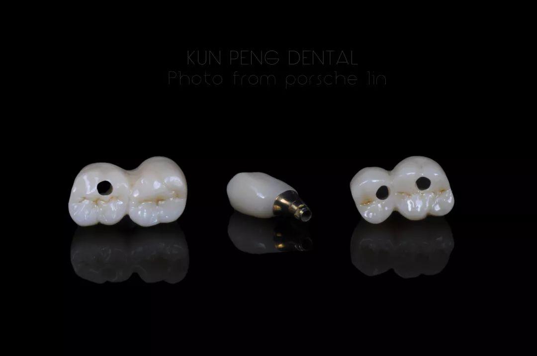 關愛牙齒,種下希望。