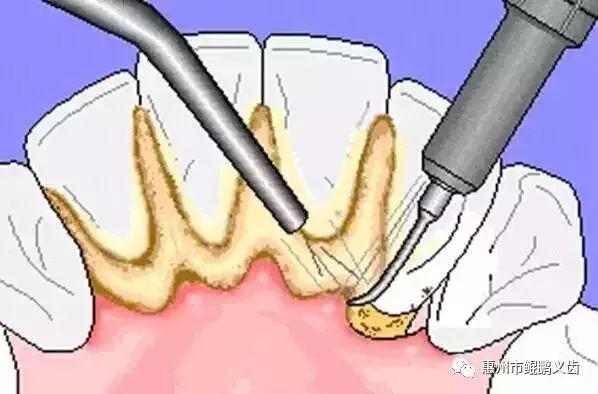 牙結石的自白:我是怎么一步一步入侵你的牙齒!