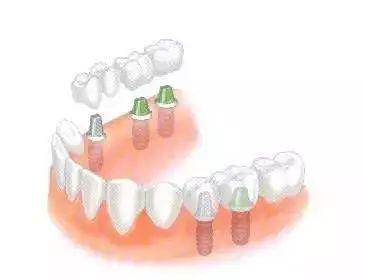 """什么是""""種植牙""""?它有哪些好處?"""
