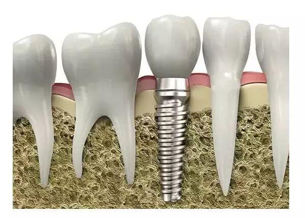 史上最全的種植牙解析,不得不看