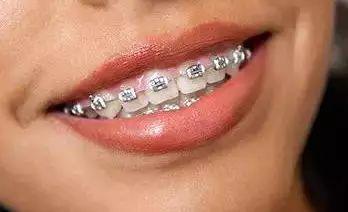 洗牙和牙周刮治的區別在哪里?