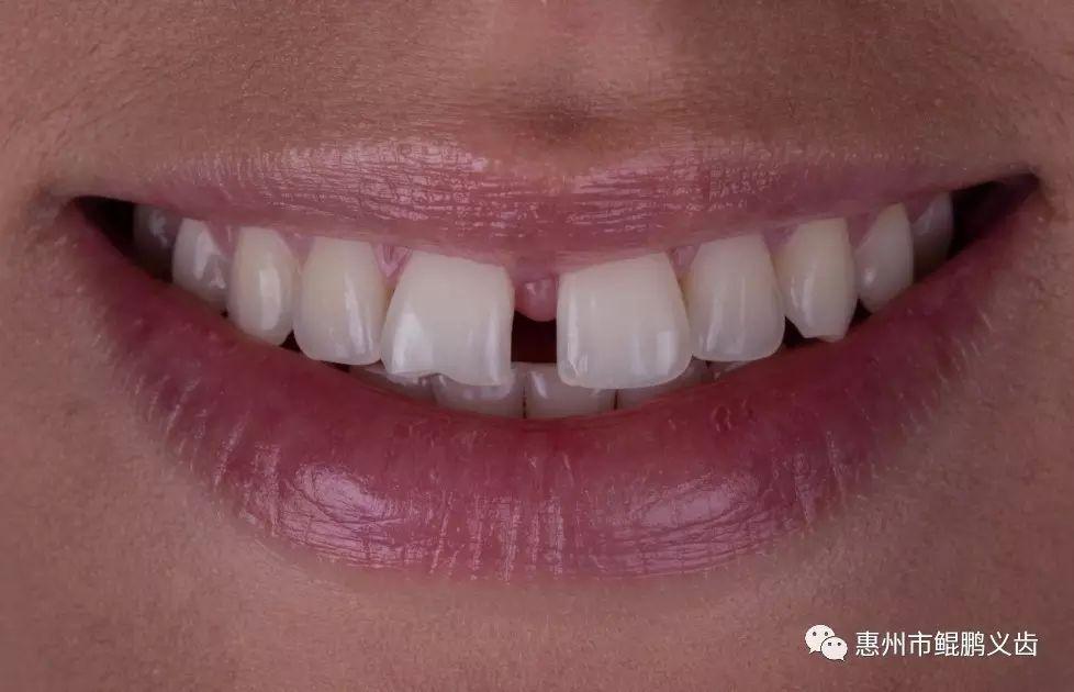 前牙超大間隙修復