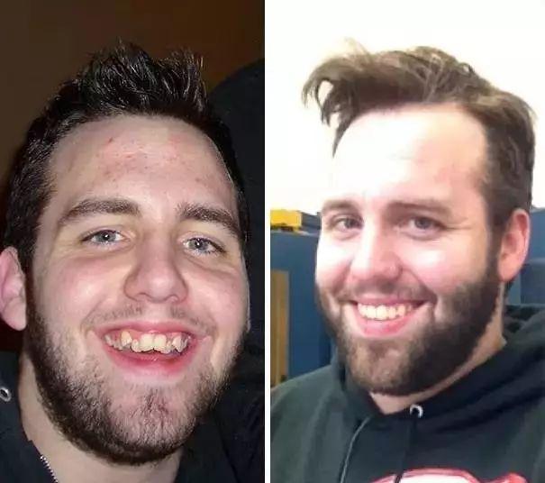 整牙前后對比