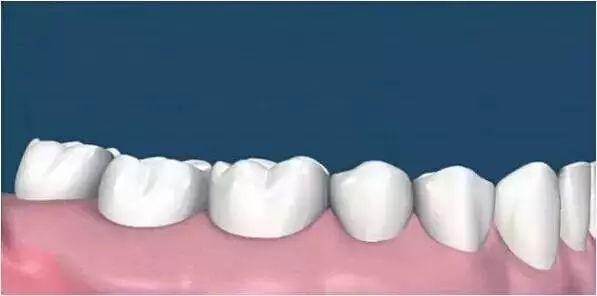 CCTV科普讓你3分鐘了解:洗牙