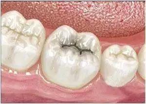 要去補牙,這些東西你要先知道!